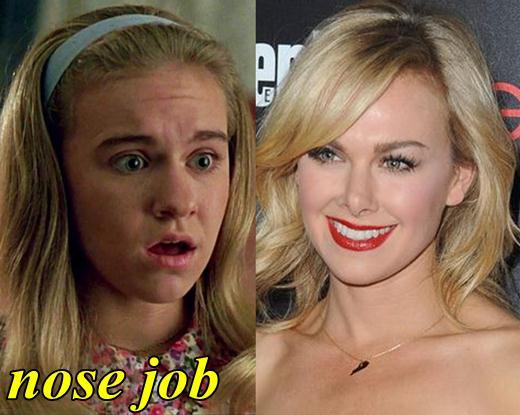 Laura Bell Bundy Nose Job