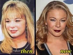 LeAnn Rimes Plastic Surgery