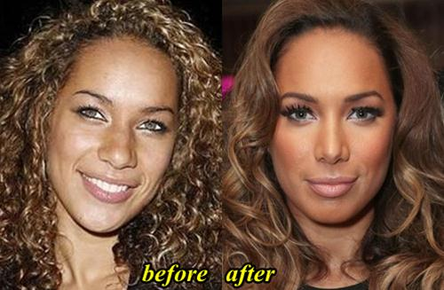 Leona Lewis Nose Job Before and After