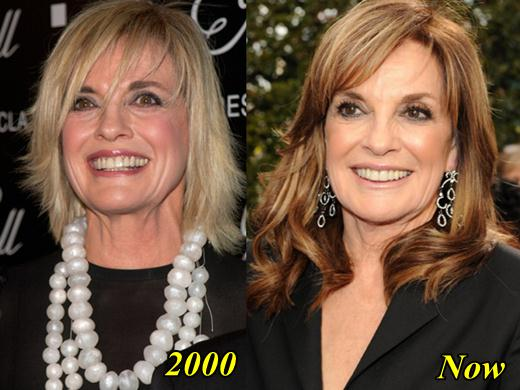 Linda Gray Plastic Surgery Before and After
