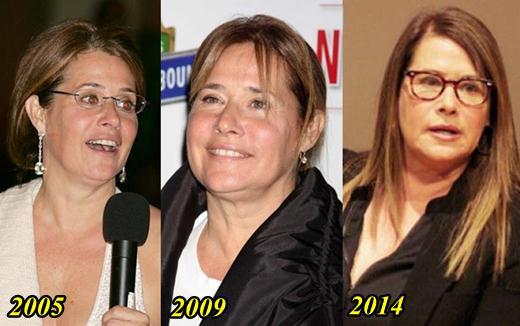 Lorraine Bracco Plastic Surgery