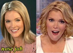 Megyn Kelly Nose Job Before and After