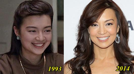Ming Na Wen Plastic Surgery Before and After
