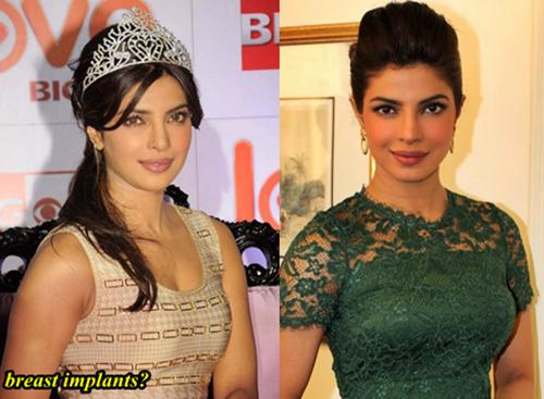 Priyanka Chopra Plastic surgery Breast Implants