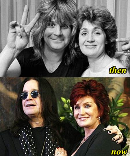 Sharon Osbourne Plastic Surgery before and After