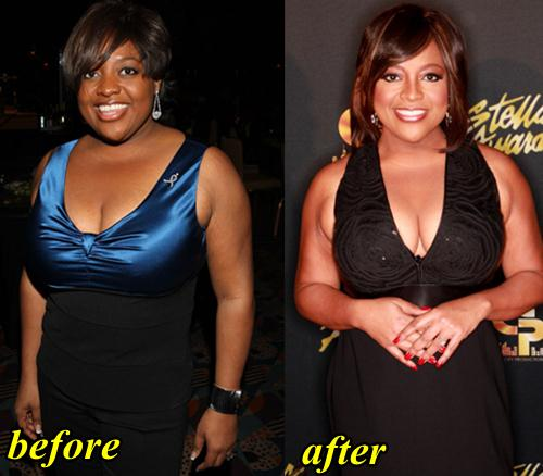 Sherri Shepherd Breast Reduction, Plastic Surgery fact or Rumor