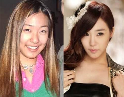 Tiffany SNSD Plastic Surgery Before and After