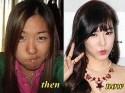 Tiffany SNSD Plastic Surgery