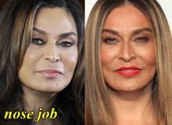 Tina Knowles Plastic Surgery Nose Job