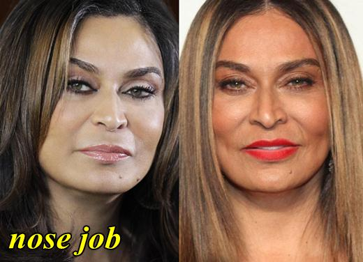 Tina Knowles Plastic Surgery Nose Job