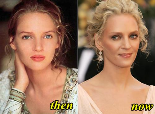 Uma Thurman Plastic Surgery Before and After