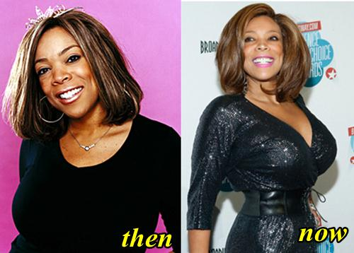 Wendy Williams Plastic Surgery, Breast Implants, Liposuction