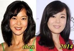 Yunjin Kim Plastic Surgery