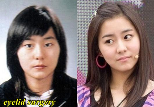 After School Uee Plastic Surgery