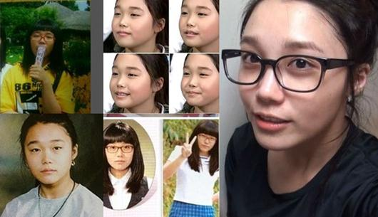 Apink Jung Eun-Ji Plastic Surgery