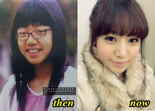 apink kim nam joo plastic surgery before and after