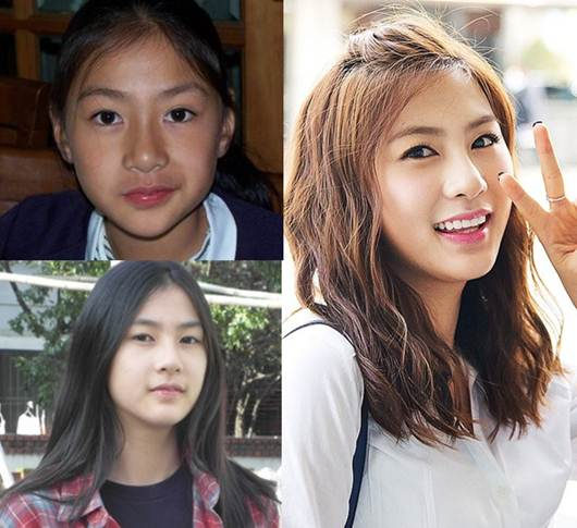 Apink Oh Hayong Plastic Surgery Rumor, She is natural