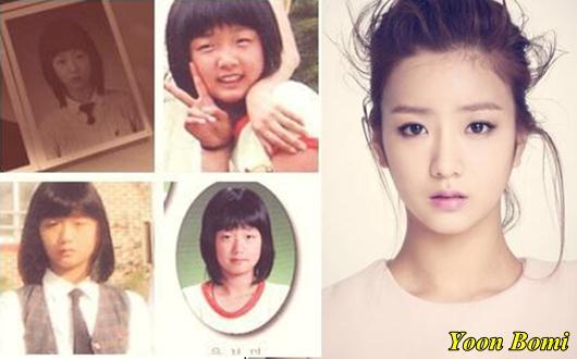 Apink Yoon Bomi Plastic Surgery