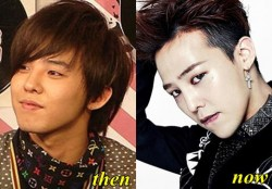 Big Bang G Dragon Plastic Surgery