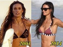 Demi Moore Breast Implants