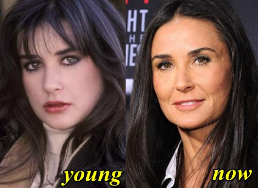 Demi Moore Plastic Surgery Before and After Botox