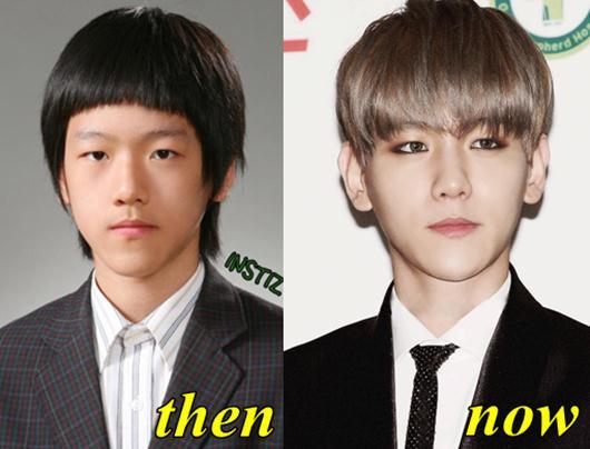 EXO Baekhyun Plastic Surgery