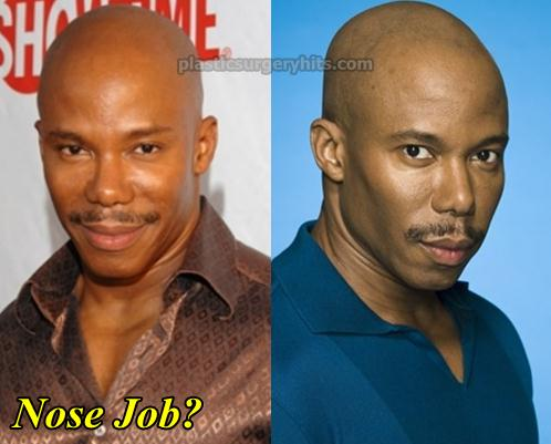 Erik King Nose Job Before and After