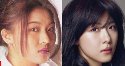 Ha Ji Won Plastic Surgery Before and After