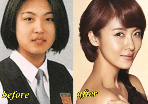 Ha Ji Won Plastic Surgery
