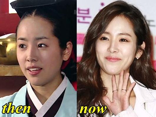 Han Ji Min Plastic Surgery