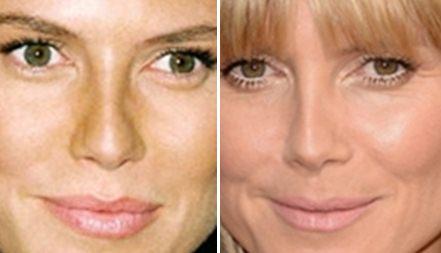 Heidi Klum Nose Job Plastic Surgery