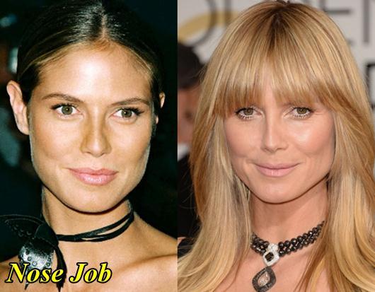 Heidi Klum Nose Job