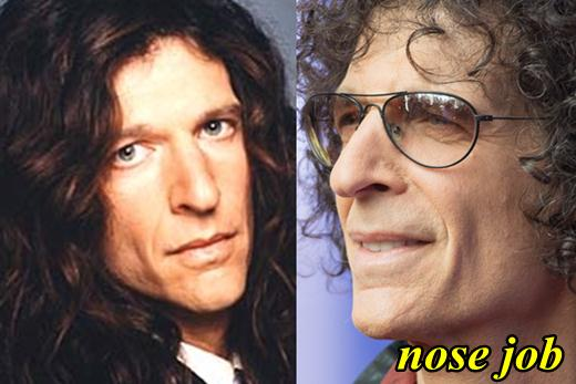 Howard Stern Nose Job