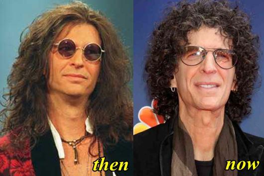 Howard Stern Plastic Surgery