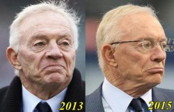 Jerry Jones Plastic Surgery Facelift