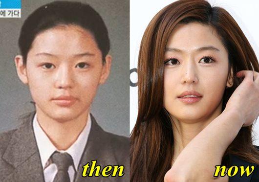Jun Ji Hyun Plastic Surgery
