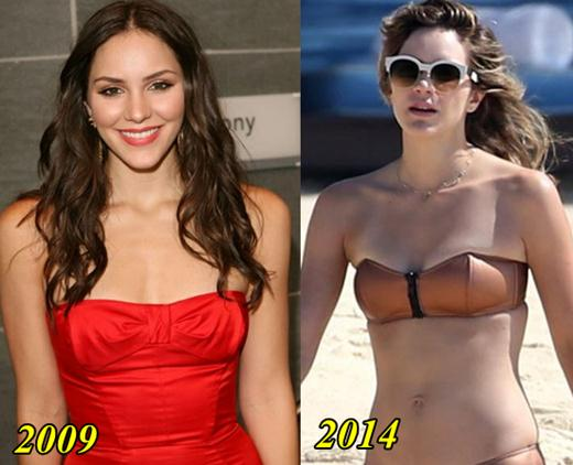 Katharine McPhee Plastic Surgery Breast Implants