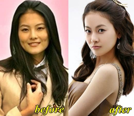 LUV Oh Yeon Seo Plastic Surgery