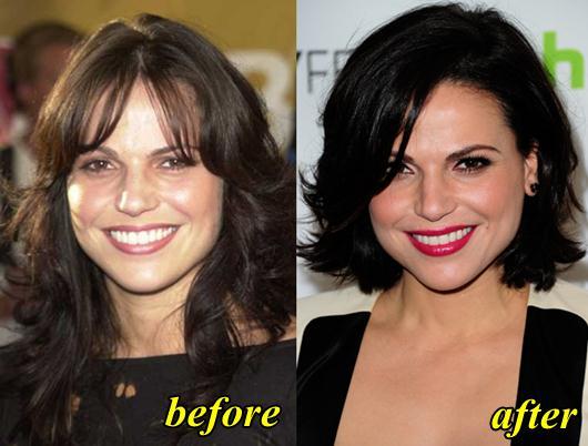 Lana Parrilla Plastic Surgery