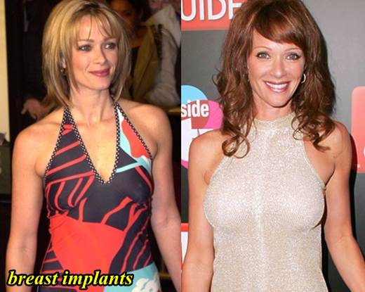 Lauren Holly Plastic Surgery Breast Implants
