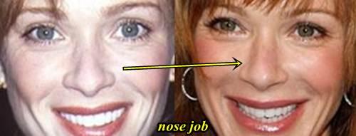 Lauren Holly nose job