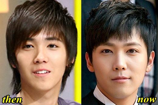 Lee Hong Ki Plastic Surgery Rumor