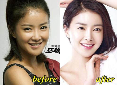 Lee Si Young Plastic Surgery Before and After