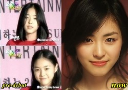 Lee Yeon Hee Plastic Surgery Rumor