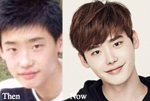 lee-jong-suk-nose-job