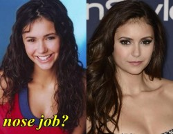 Nina Dobrev Plastic Sugery nose Job
