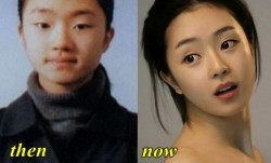 Seo Woo Plastic Surgery Before and After