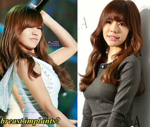 Sunny SNSD Breast Implants