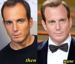 Will Arnett Plastic Surgery Before and After