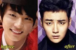 Yoon Shi Yoon Plastic Surgery